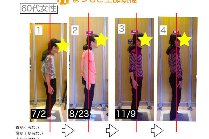 金沢市まつもと上部頸椎カイロプラクティックによる姿勢変化